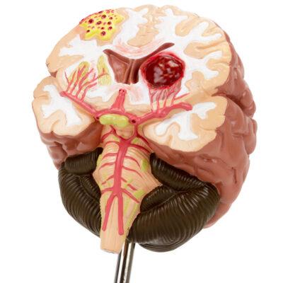 Seção do Cérebro com Patologia