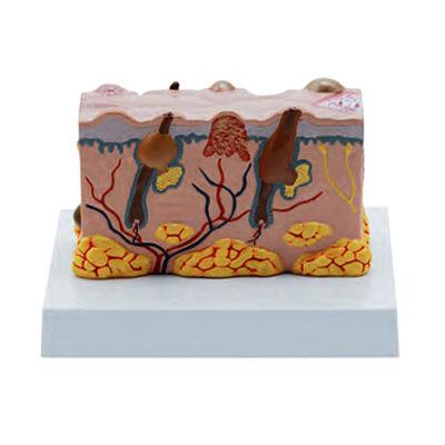 Modelo em Bloco da Pele com Patologia Ampliado 30 Vezes