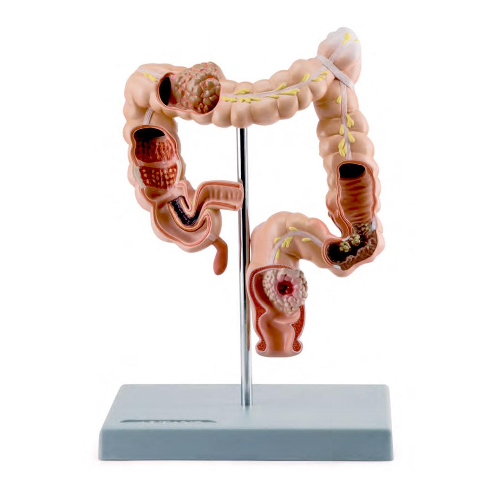 Patologias Intestinais, é um modelo de estudo da gastroenterologia com metade do tamanho natural que mostra várias patologias do cólon e do reto.