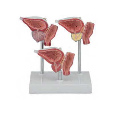 Série da Próstata Normal e Patologia 3 Modelos