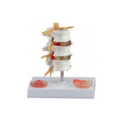 Três Vértebras Lombares com Hérnia e Prolapso CL795