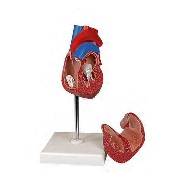 Coração Clássico com Hipertrofia Ventricular 2 Partes, caracterizada pelo espessamento do miocárdio e das fibras musculares do ventrículo esquerdo.