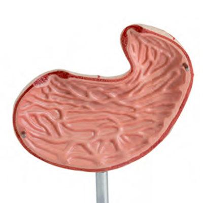 Estômago em 2 Partes, é um modelo em tamanho natural dissecado ao longo de um plano médio que pode ser aberto para mostrar a estrutura interna do estômago.