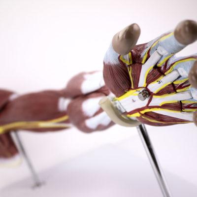 Braço de Luxo com Músculos Destacáveis em 7 Partes