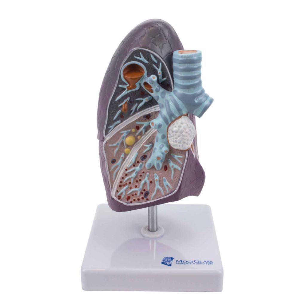 Pulmão com Patologia, 1 vez e meia o tamanho natural ilustra patologias do sistema pulmonar por infecções, abcesso pulmonar, pneumonia e tuberculose.