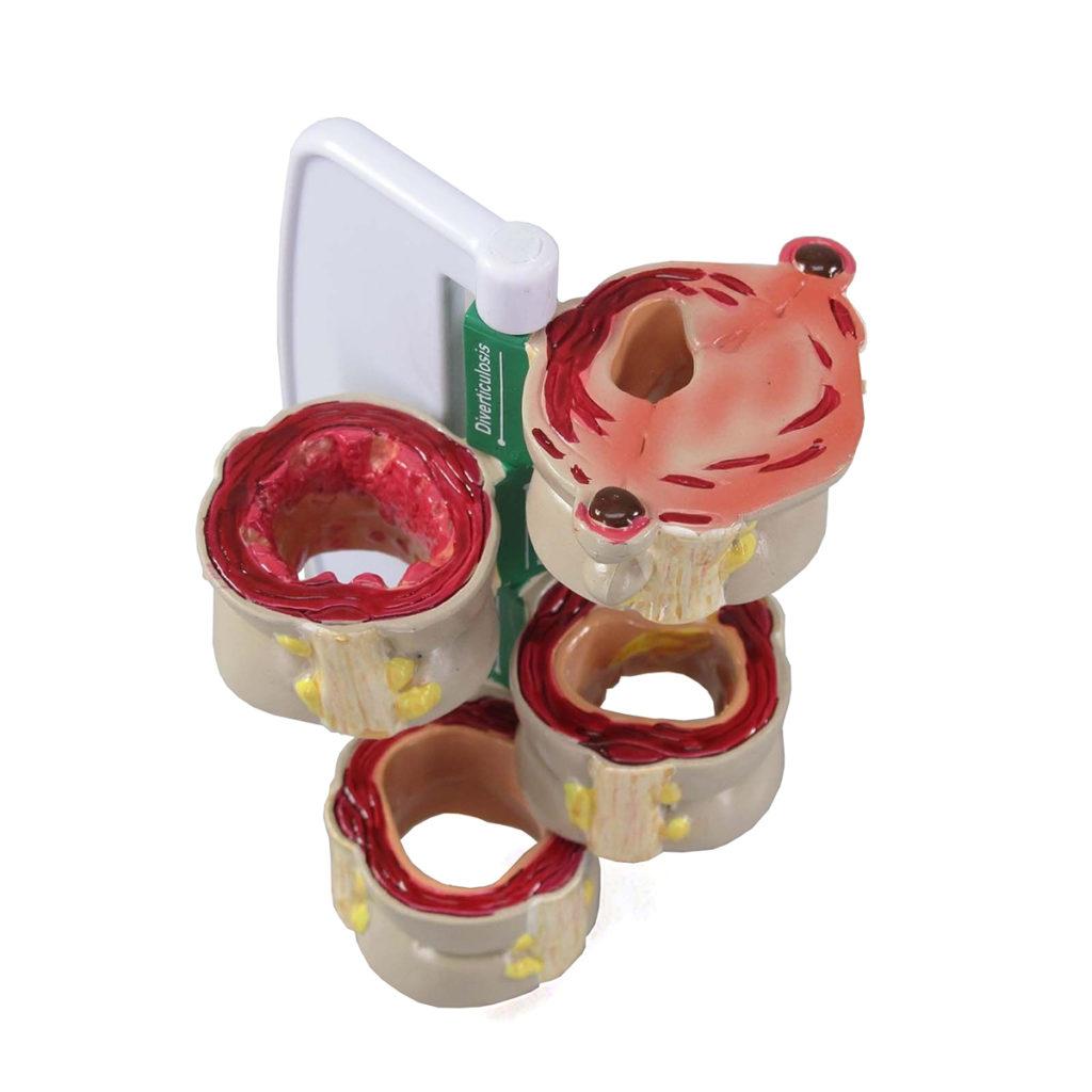 Modelo de Cólon em 4 peças, é um modelo em seção transversal do cólon  em tamanho superdimensionado mostrando condições normais e algumas patologias.