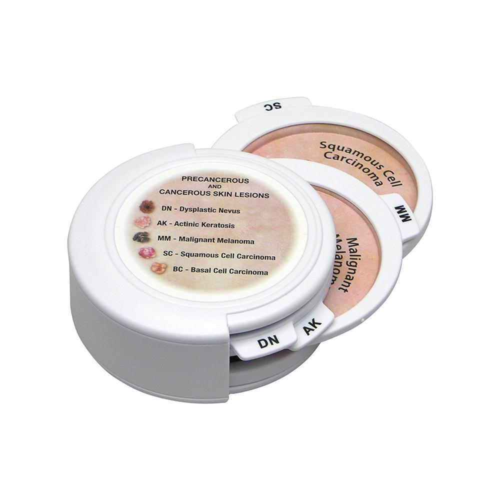 Conjunto de Disco de Câncer de Pele, é um modelo portátil de um disco apresentando 5 tipos de lesões cutâneas pré-cancerosas e cancerígenas.