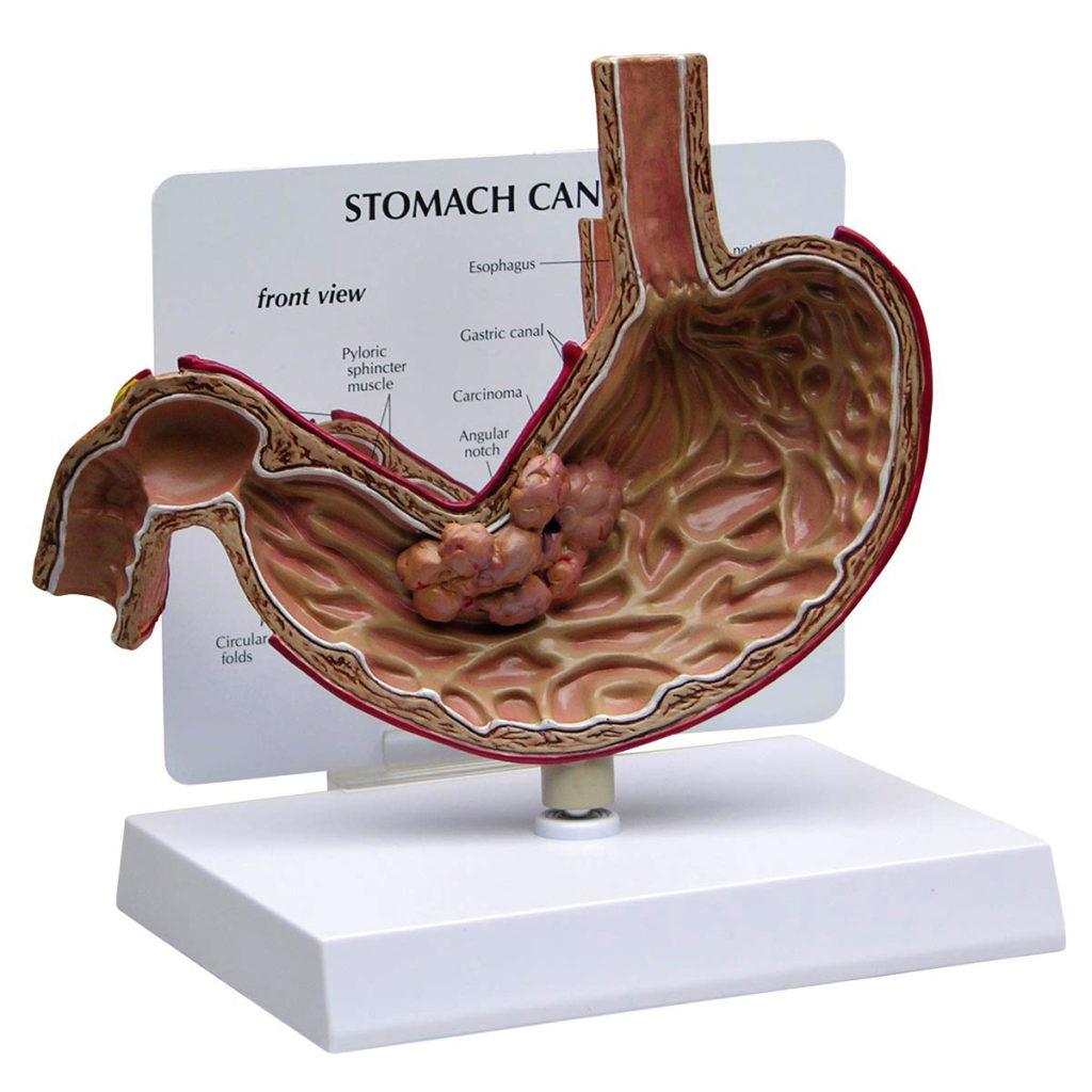 O Modelo de Câncer Estômago, uma seção transversal em tamanho natural de um estômago com um carcinoma. O corte demonstra um grande tumor no estômago.
