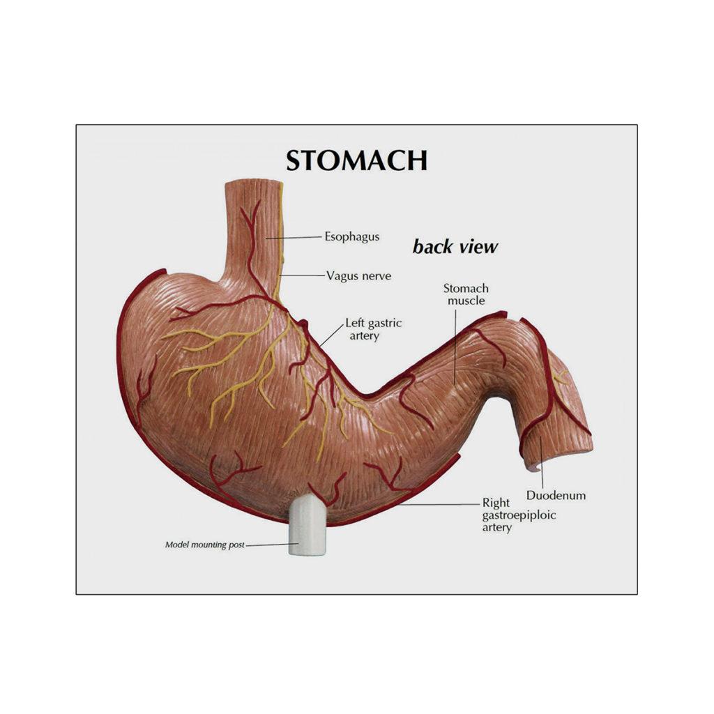 Modelo Anatômico de Câncer de Estômago cartão