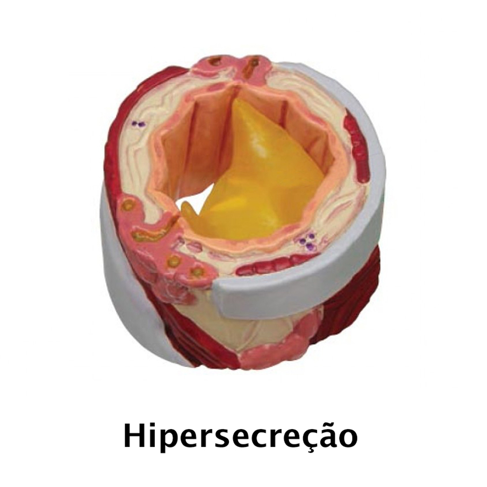 hipersecreção