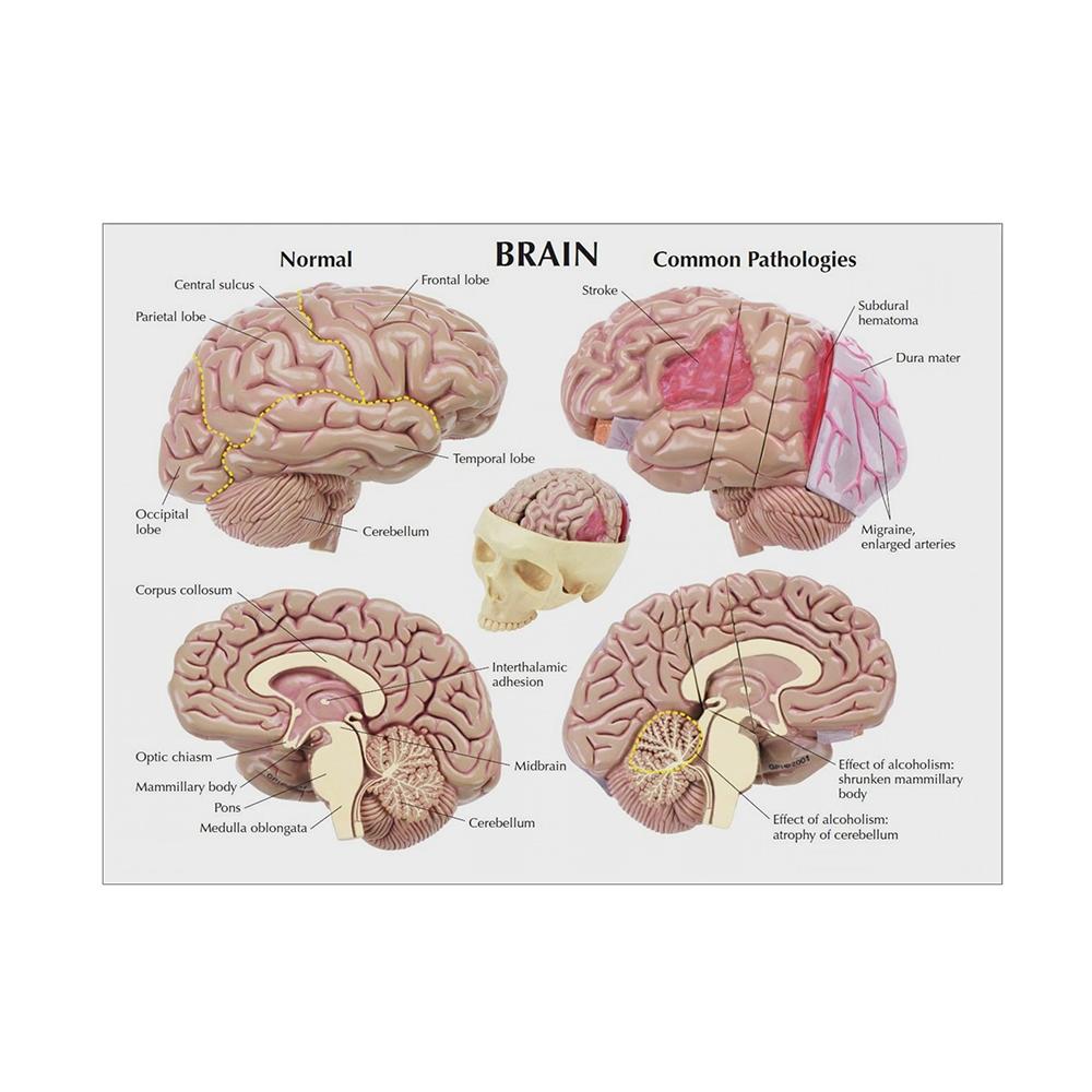 Modelo de Cérebro Segmentado cartão 01
