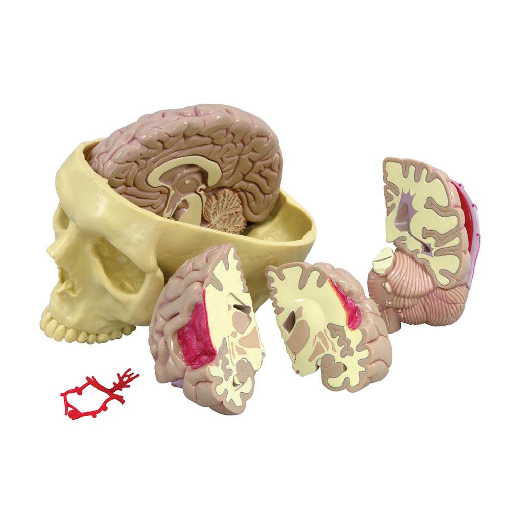 Modelo de Cérebro Segmentado, em tamanho natural com um lado normal e outro seccionado em 3 peças com patologias, bem como Círculo de Willis com aneurisma.