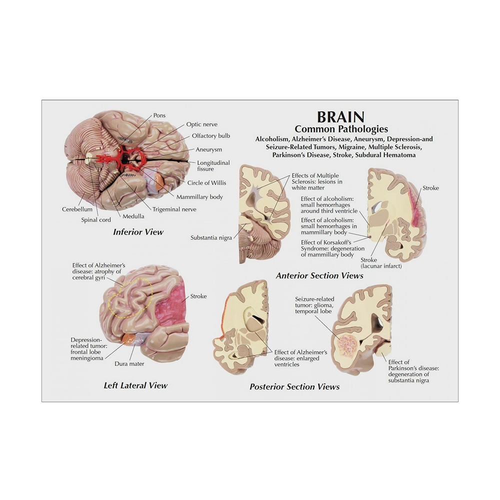 Modelo de Cérebro Segmentado cartão 02