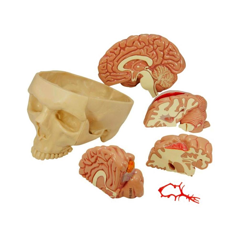 Modelo de Cérebro Segmentado