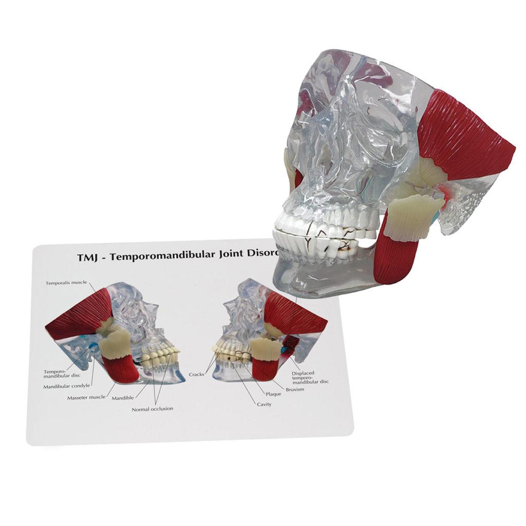 Modelo de Cabeça Transparente com Músculos ATM, é uma Articulação Temporomandibular, mostrando as estruturas com problemas associadas à cápsula articular.