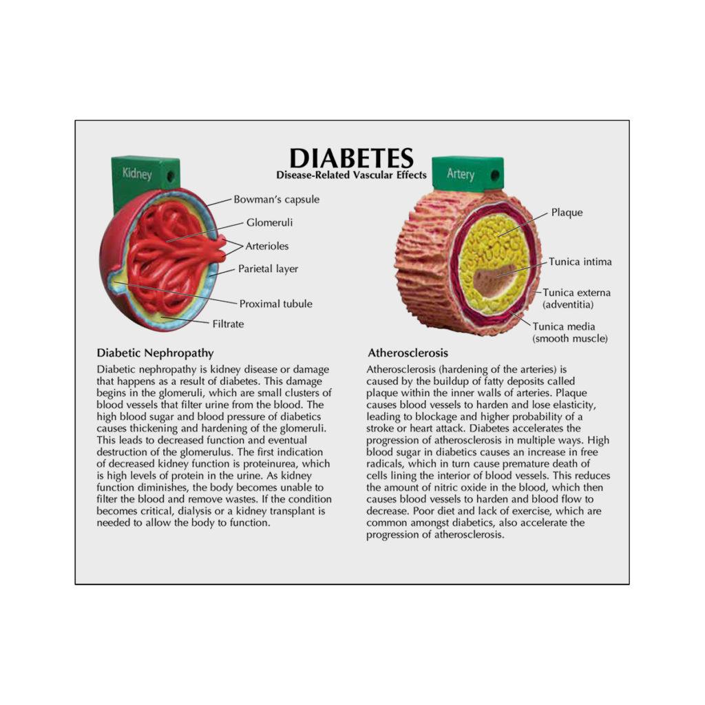 Modelo de Diabetes de 4 peças cartão 01
