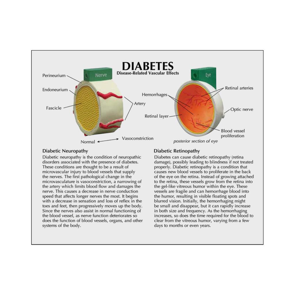 Modelo de Diabetes de 4 peças cartão 02