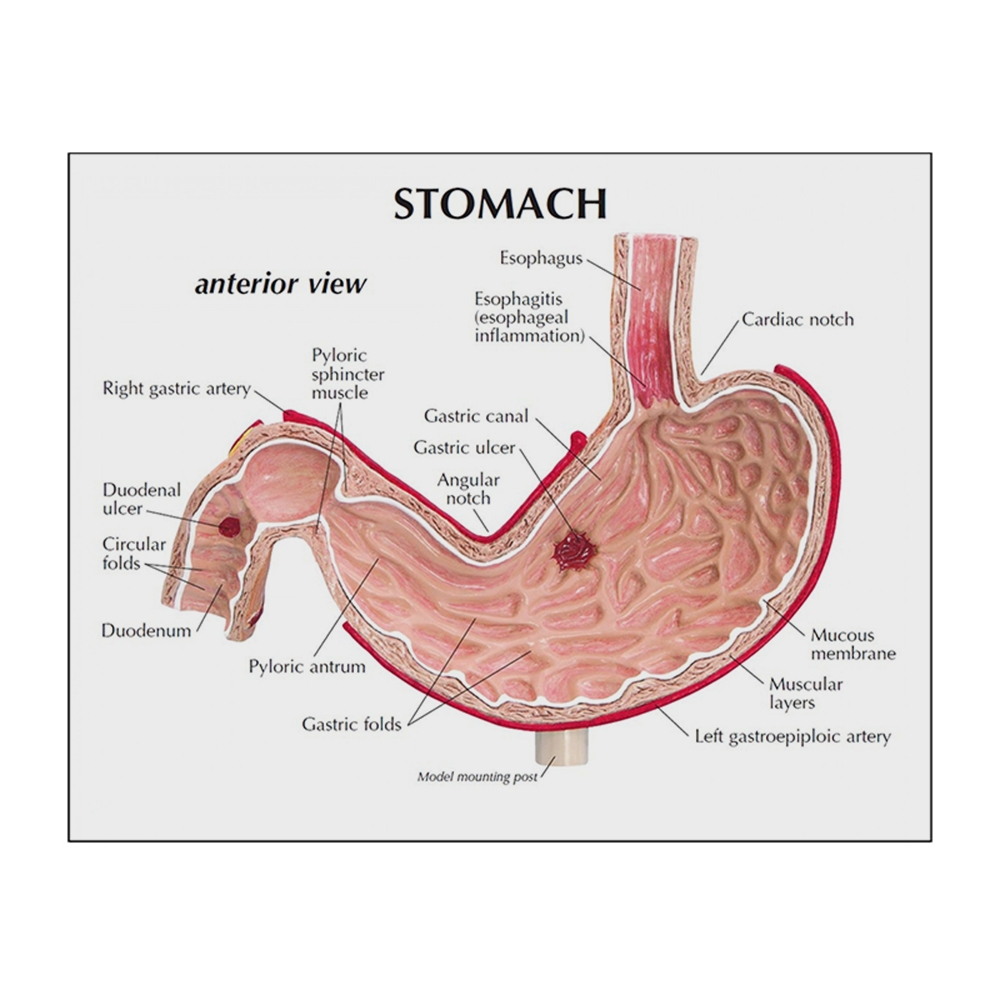 Estômago com Úlceras cartão 01