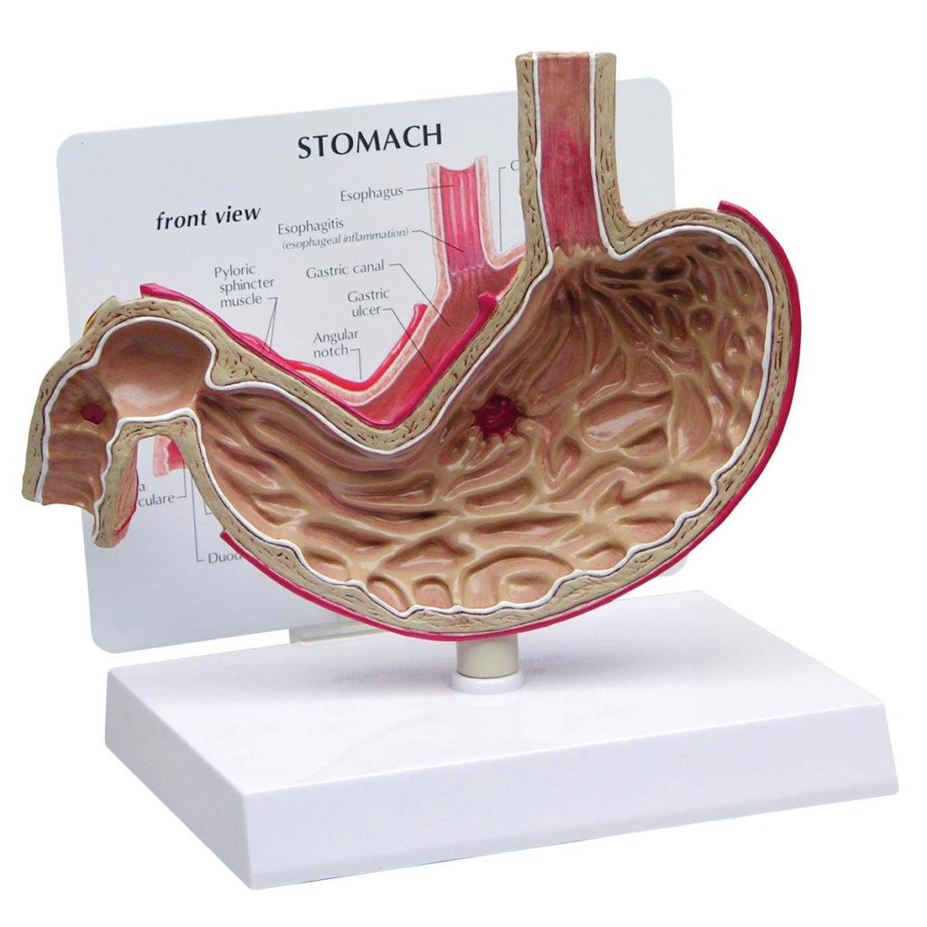 Modelo de Estômago com Úlceras, corte transversal em tamanho natural do estômago, modelo mostra inflamação esofágica, úlcera gástrica e úlcera duodenal.