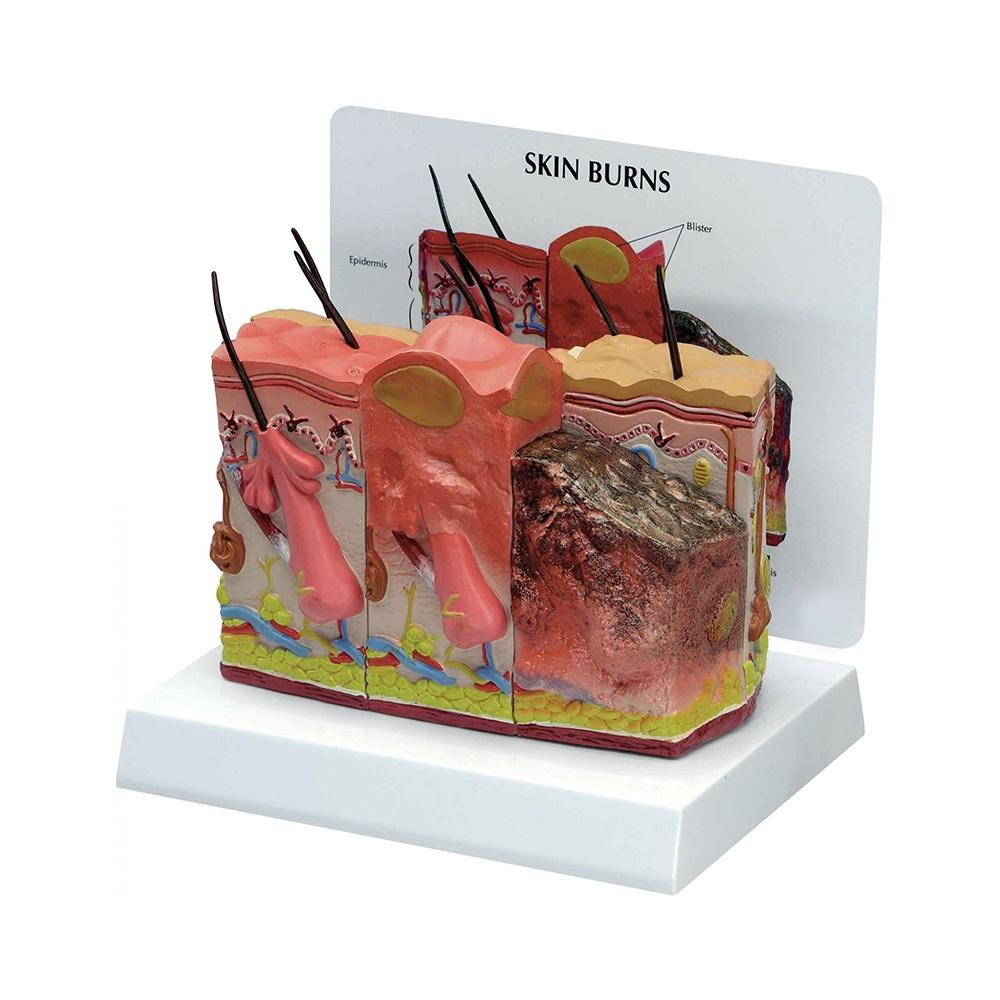 Modelo de Pele Queimada e Normal, secção transversal ampliada 75 vezes o tamanho natural da pele, mostrando pele normal e queimaduras de 1º, 2º e 3º graus.