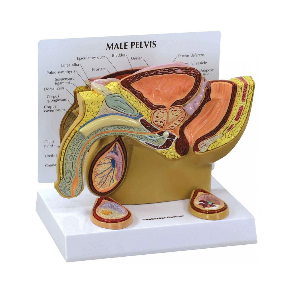 Modelo de Pelve Masculina com Testículos, modelo em tamanho reduzido numa seção transversal médio-sagital que mostra 2 testículos cancerosos.