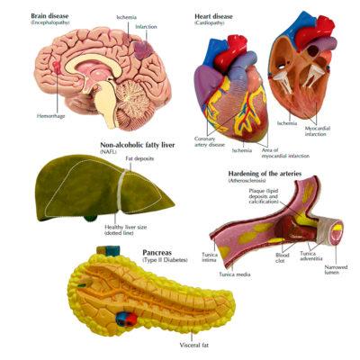 Modelo de Síndrome Metabólica detalhe