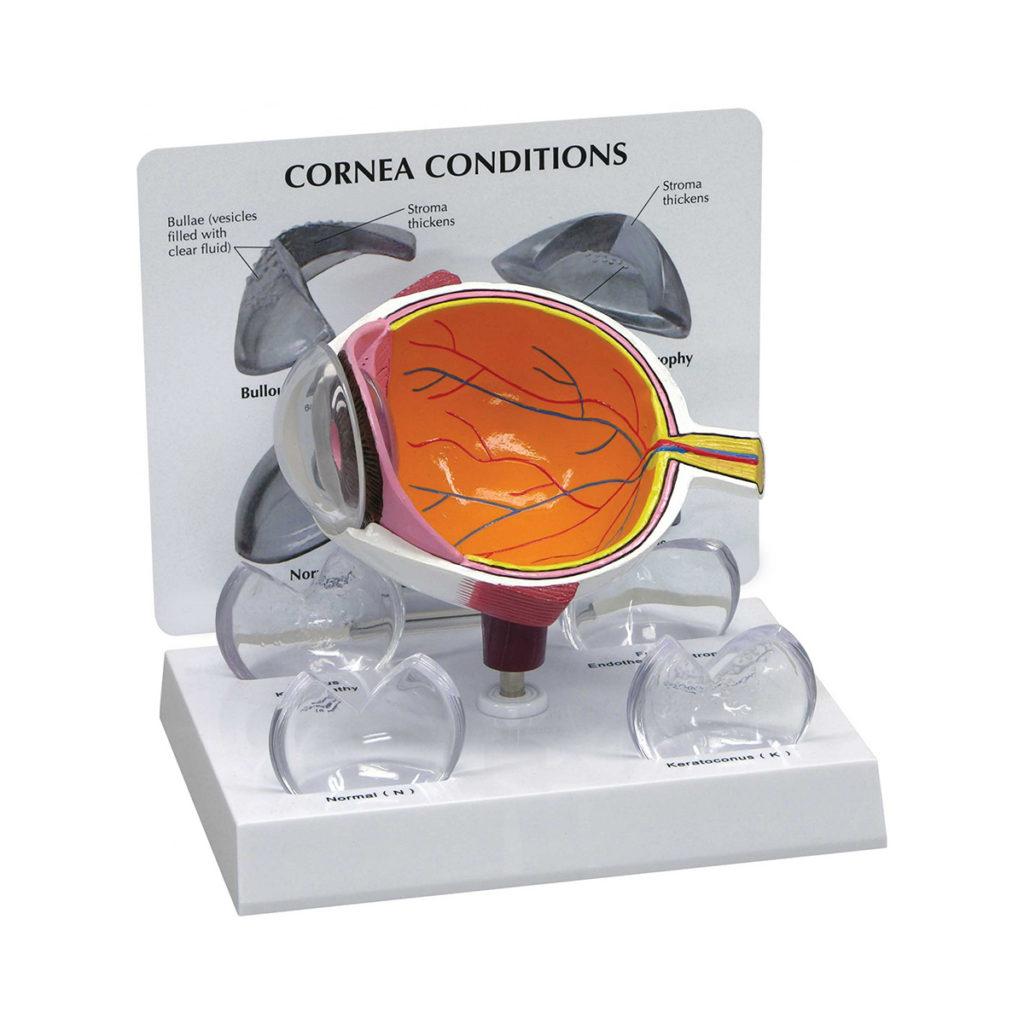 Modelo de Seção Transversal da Córnea, é um modelo de olho normal superdimensionado com corte para mostrar a anatomia interna.