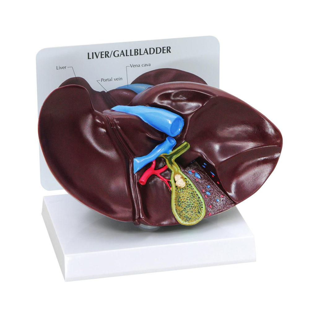 Modelo de Vesícula Biliar e Fígado com Cálculos Biliares, em tamanho natural com corte mostrando a anatomia interna da vesícula biliar e cálculos biliares.