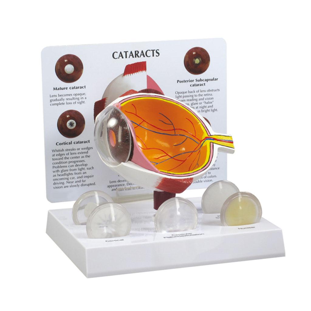 Olho com Catarata, é um modelo de olho normal superdimensionado com corte medial para mostrar a anatomia interna e patologias.