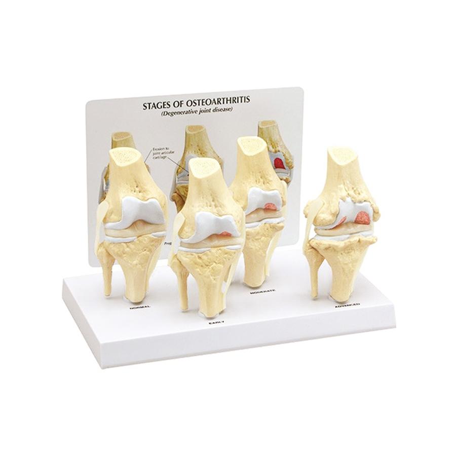 Joelho com Patologia Degenerativa da Articulação, é um conjunto de 4 modelos de joelho adulto em tamanho reduzido apresentando vários estágios de doenças articulares degenerativas.