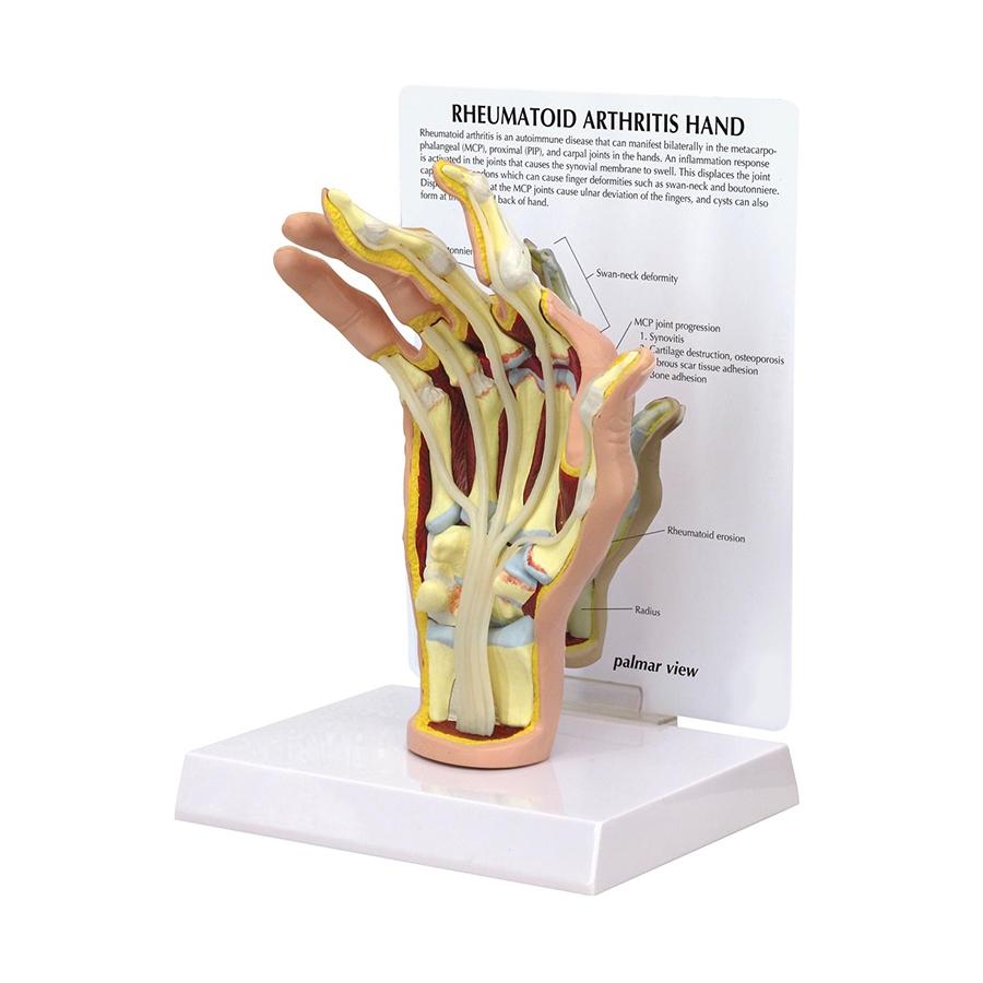 Mão com Artrite Reumatoide, é um modelo de mão direita em tamanho natural com secção de corte que mostra os efeitos da artrite reumatoide.