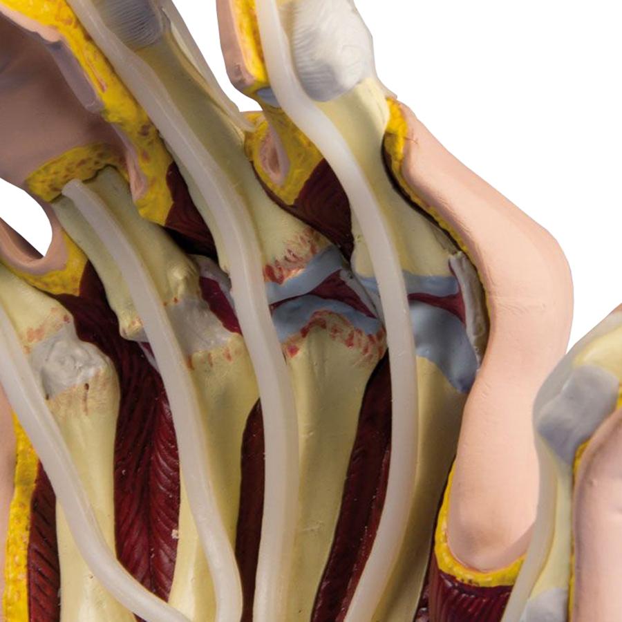 Mão com artrite reumatoide