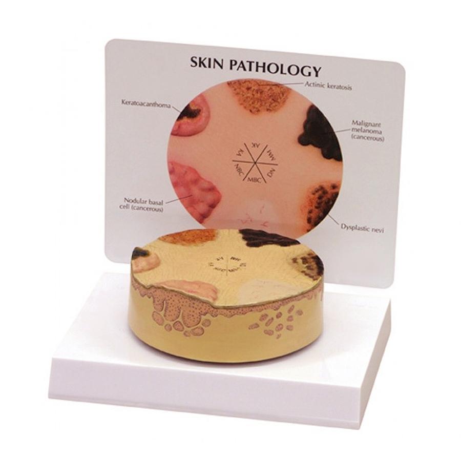 O Modelo de Câncer de Pele, mostra patologia da pele na superfície da pele humana e quando se espalhou por camadas mais profundas abaixo da pele.
