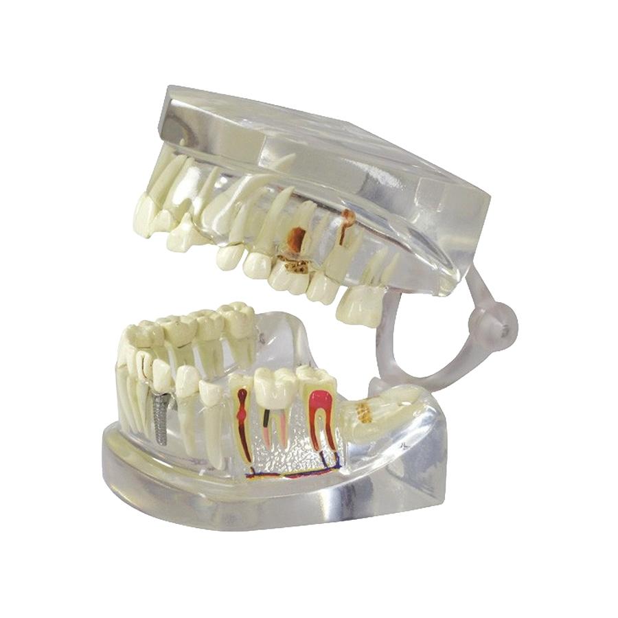 Mandíbula Humana Translúcida com Dentes