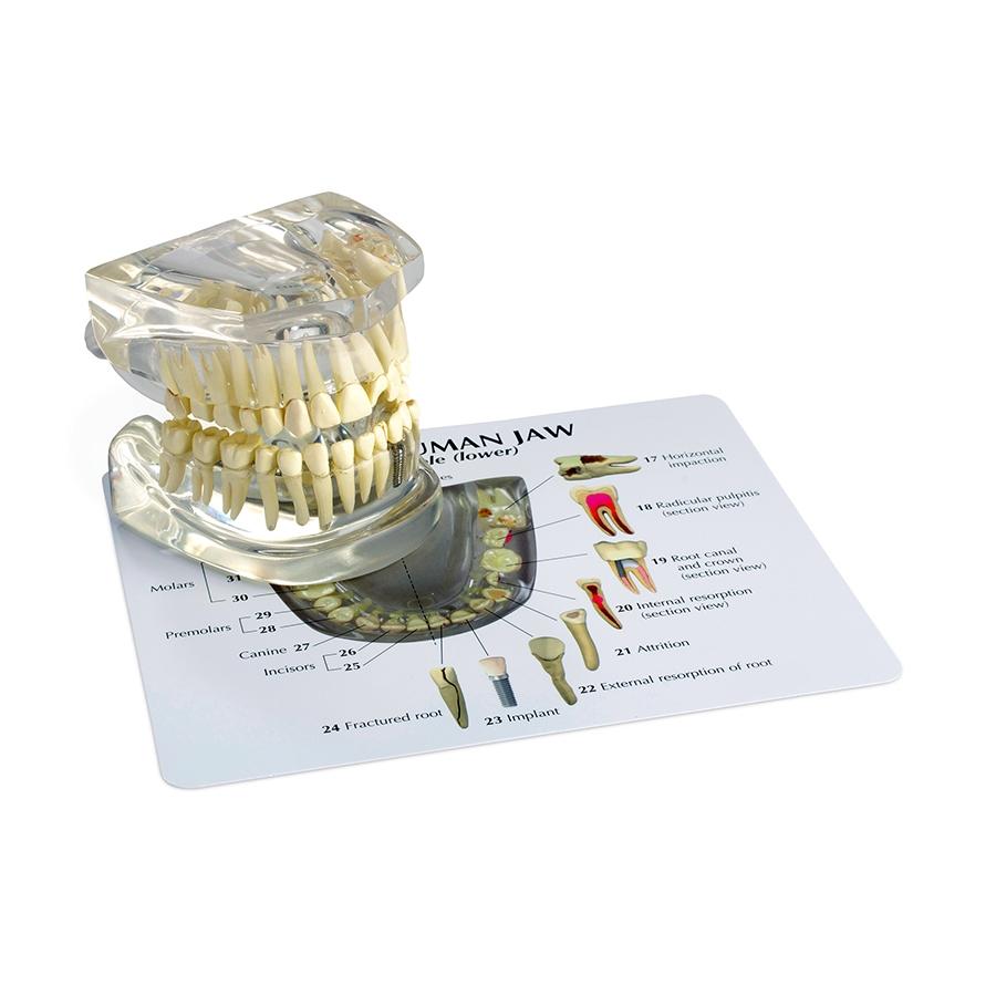 Mandíbula Humana Translúcida com Dentes, é um modelo com dobradiças em tamanho natural para permitir a visualização das raízes dos dentes e patologias.