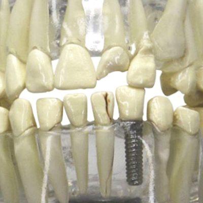 Mandíbula Humana Translúcida com Dentes - detalhe