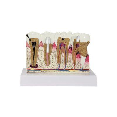 Modelo dos Dentes frente sem cartão