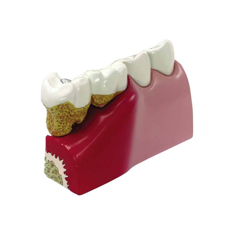 Modelo dos Dentes cartão