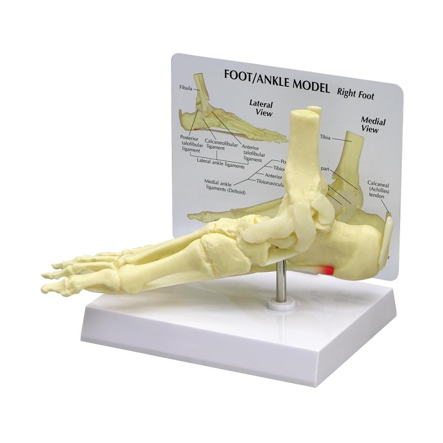 Pé e Tornozelo com Fascite Plantar, em tamanho natural dos ossos do tornozelo e do pé mostrando o ligamento calcâneonavicular plantar com fascite plantar.