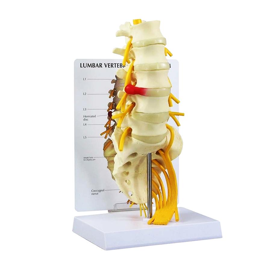 Vértebras com Sacro em 5 Peças, é uma reprodução em tamanho natural de uma coluna lombar adulta da vértebra L1 a vértebra L5.