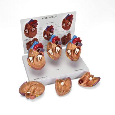 Conjunto de 3 Minimodelos de Coração