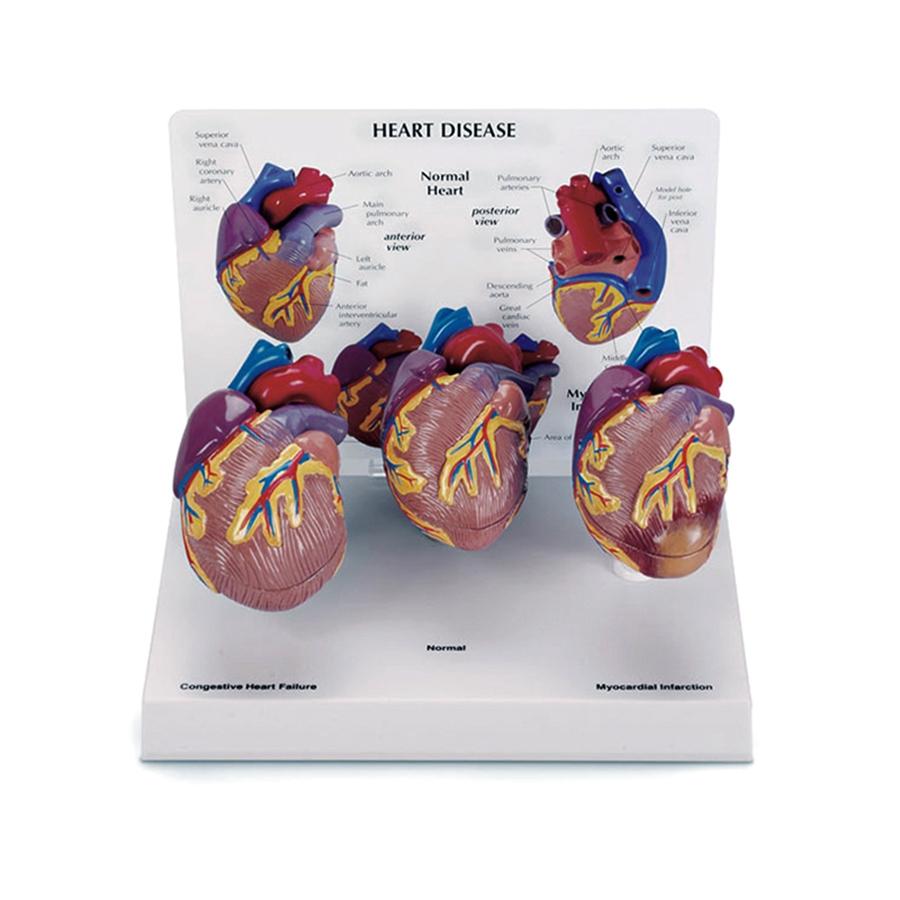 Conjunto de 3 Minimodelos de Coração, um modelo normal de coração, um modelo com infarto do miocárdio e um coração demonstrando insuficiência cardíaca.