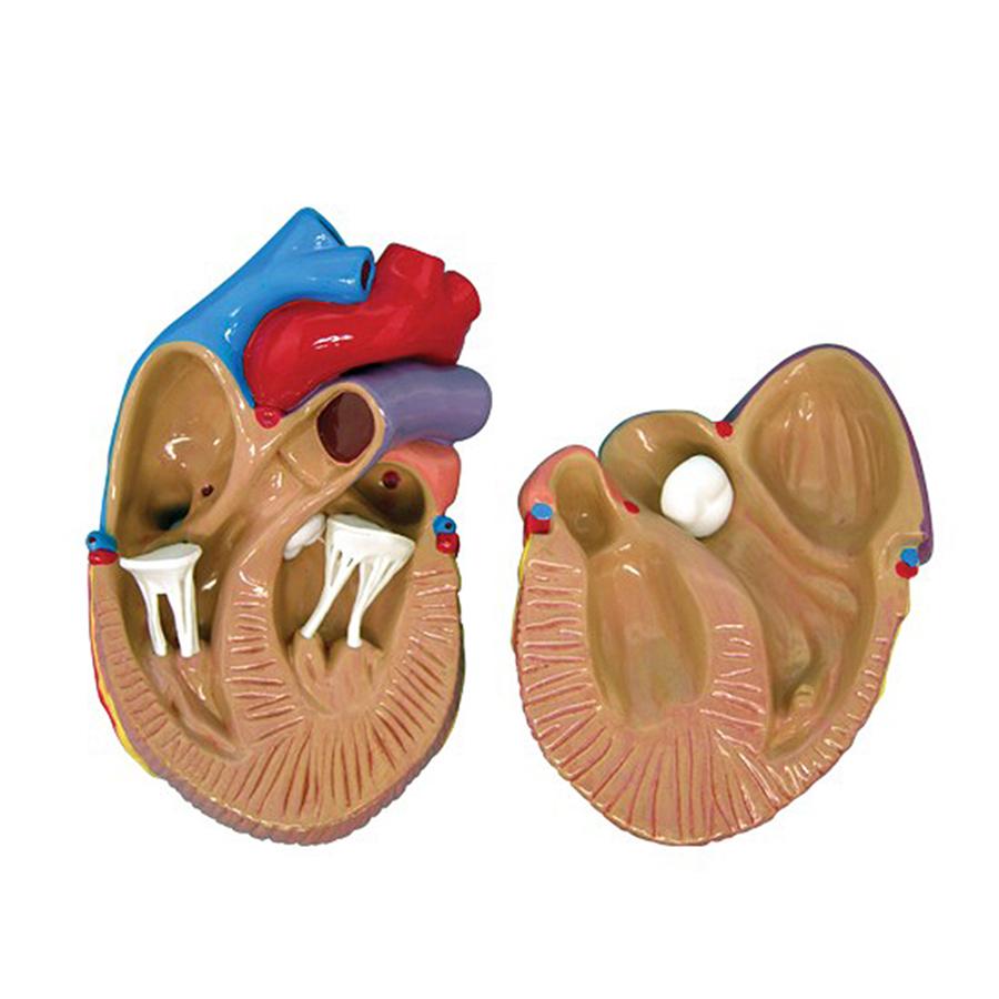 Detalhe do modelo - Insuficiência cardíaca