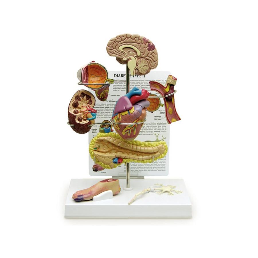 Conjunto de Diabetes Tipo II, são modelos em miniatura do cérebro, do olho, do coração, do da rim, artéria, do pâncreas, do neurônio e do pé.