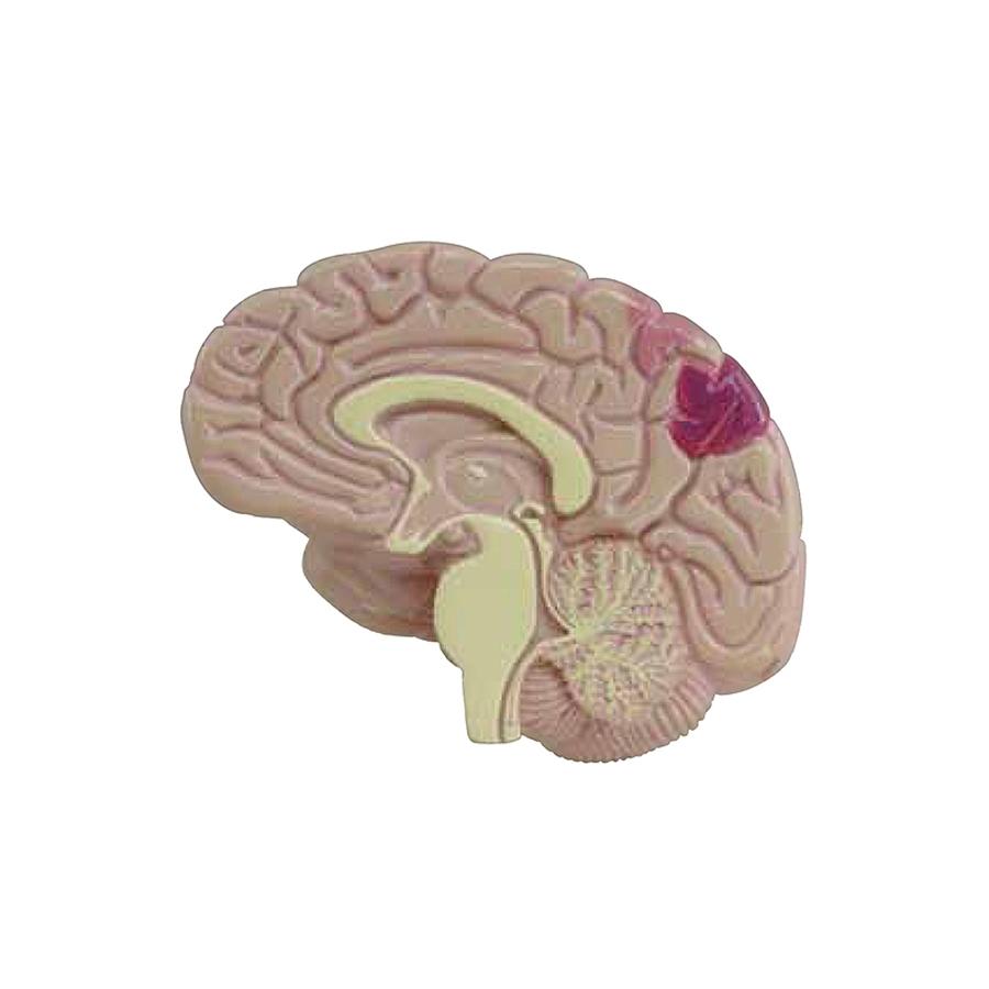 metade do cérebro - miniatura