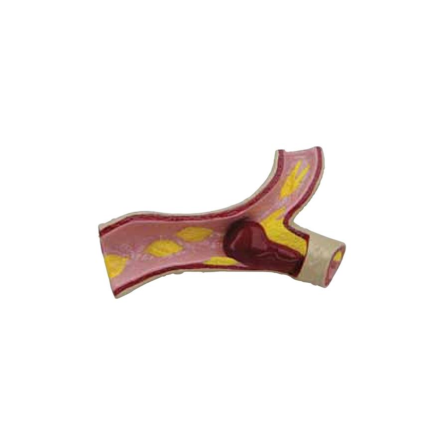 artéria - superdimensionada