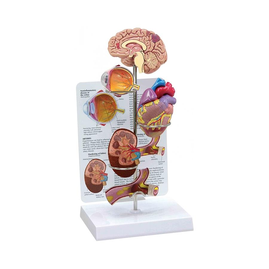 Conjunto de Hipertensão, são modelos em miniatura que ilustram as estruturas do cérebro, do olho, do coração, do rim e das artérias.