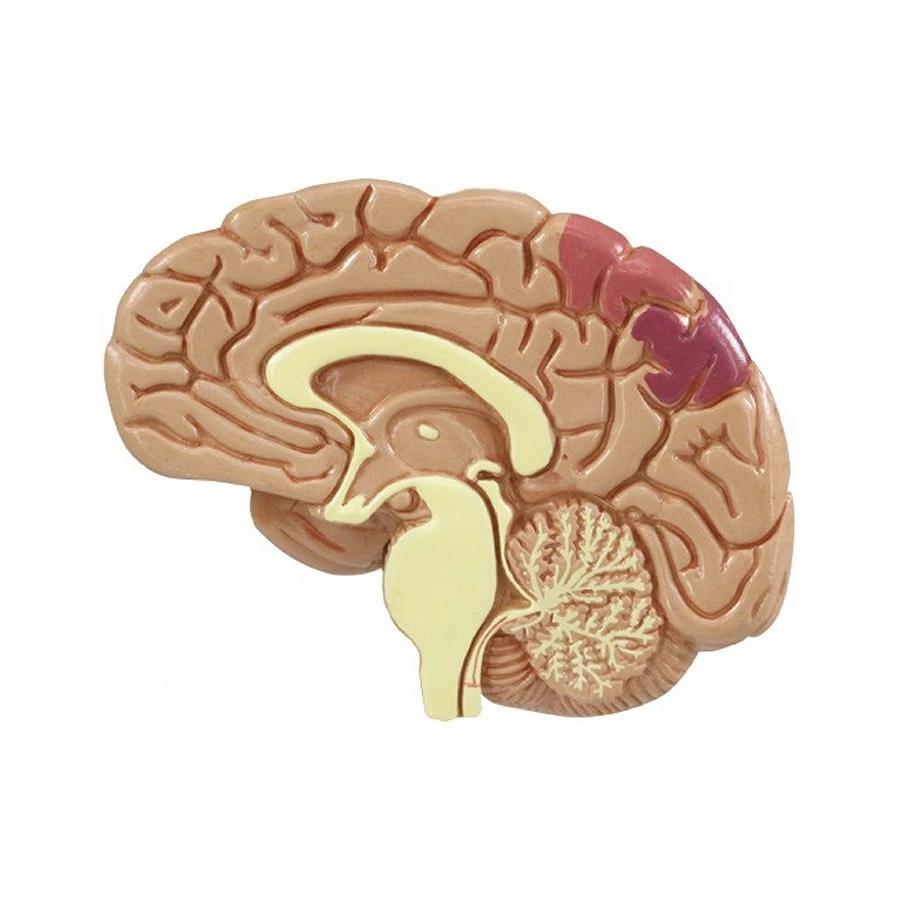 Conjunto de Hipertensão - cérebro