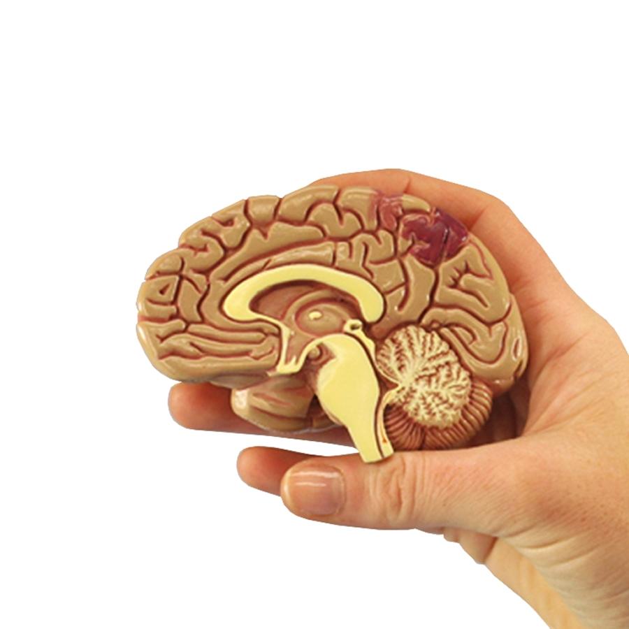 seção do cérebro