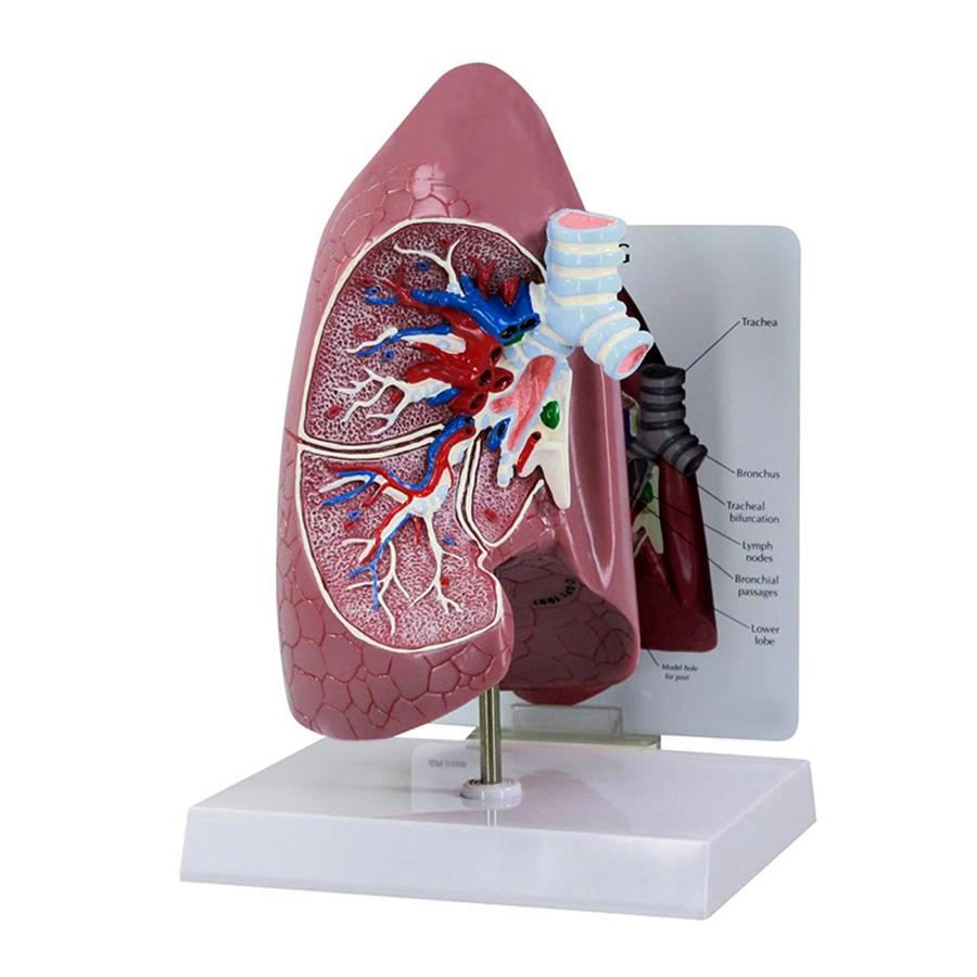 Modelo de Pulmão, tamanho natural em corte frontal mostrando brônquios, artérias, veias, 2 nódulos linfáticos, passagens brônquicas e bifurcação traqueal.